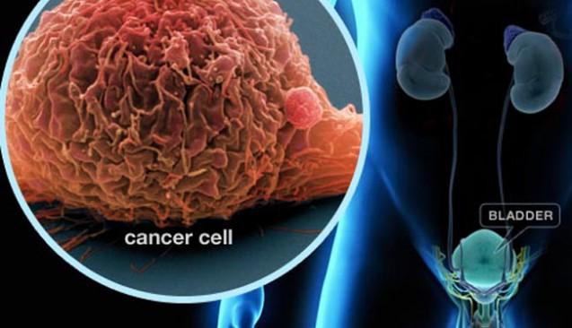 Трансуретрална (безкръвна) резекция на 4.5 см тумор на пикочния мехур